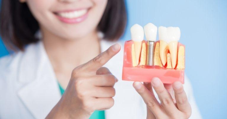 A fogászati implantátum legnagyobb előnyei Oralcentrum Fogászat Érd